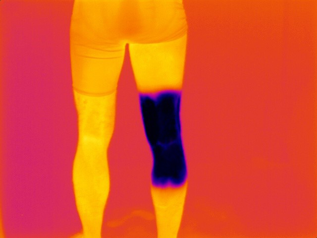 Thermal_knee_image_physiolab
